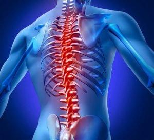 Artrodese Dá Direito Às Isenções?